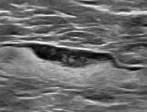 Foi descoberto que as vacinas COVID-19 causam adenopatia, inflamação do tecido glandular ou nódulos linfáticos, o que pode ser uma preocupação na mamografia de rastreamento.  Esta imagem mostra uma mulher de 55 anos que foi submetida a mamografia e ultrassonografia 7 dias após a primeira dose de vacinação com COVID-19.  A mamografia e a ultrassonografia demonstraram linfonodo axilar esquerdo unilateral com espessura cortical de 5 mm na ultrassonografia (não mostrado).  #COVIDvaccine # COVID19