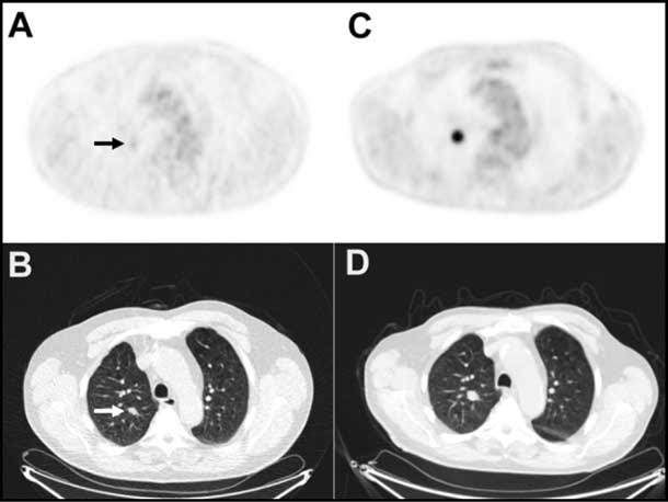 PET and CT scans showing a lung nodule