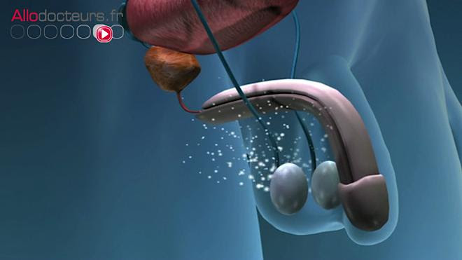 Cancer de la prostate : éjaculer pour réduire les risques ?