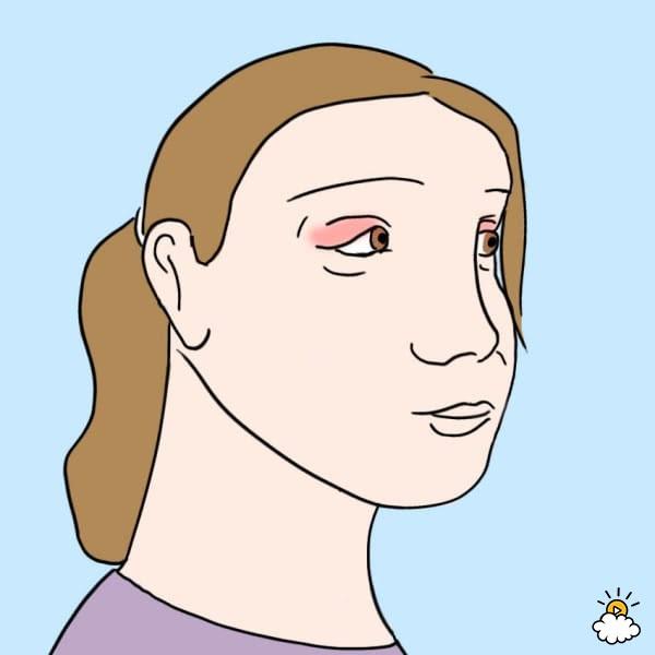Sự thay đổi bất thường ở mắt báo hiệu bệnh nguy hiểm - Ảnh 4.