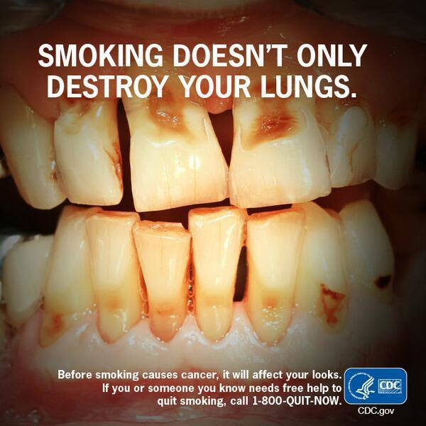 Smoking doesn't only destroy your lungs. Before smoking causes cancer, it will affect your looks.