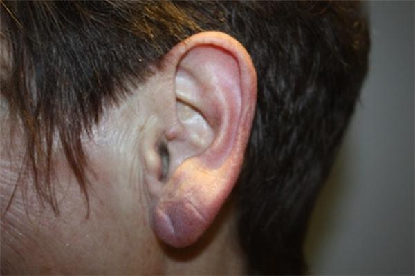 Bạn có nghĩ vành tai khô, khác thường là do cơ thể đã