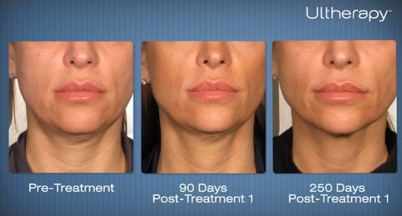 Ultherapy 3