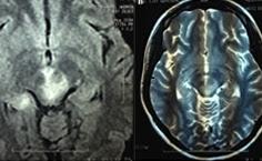 Enfermedad de neuro-Behçet en Perú: reporte de caso y revisión de la literatura