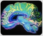 Study could lead to new therapies to improve movement control in stroke survivors