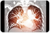 World Lung Cancer Day: FIRS commemorates and supports lung cancer patients