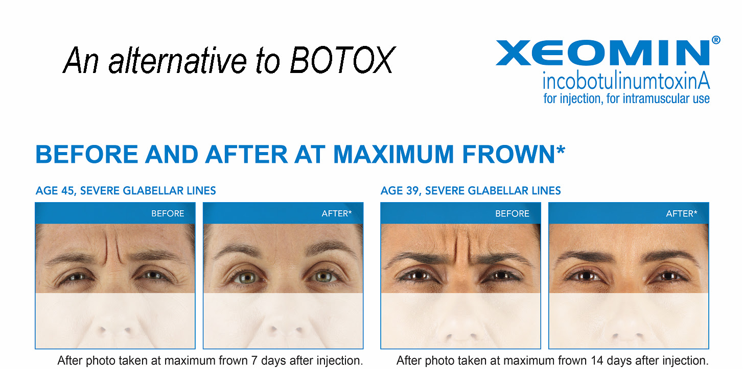 Alternative to Botox – Get Your FREE $100 Gift Card For