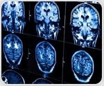 Study provides 'big picture' of cognitive flexibility