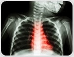 Rheumatic heart disease: overview