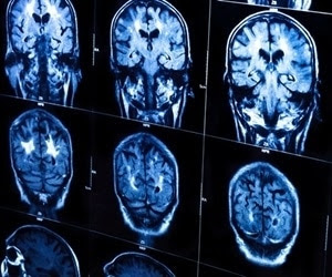 Brain scan can help select the right Parkinson's patients for clinical trials