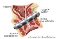 Fenix System