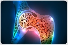 Study reveals new genes and biological pathways linked to osteoarthritis
