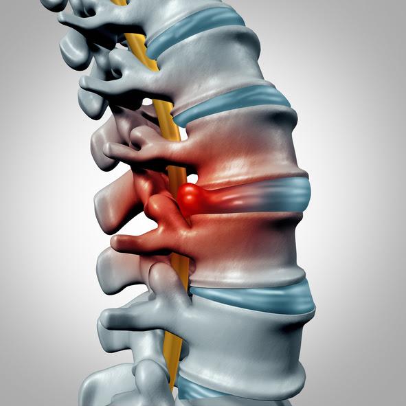 ilustracion de una hernia de disco
