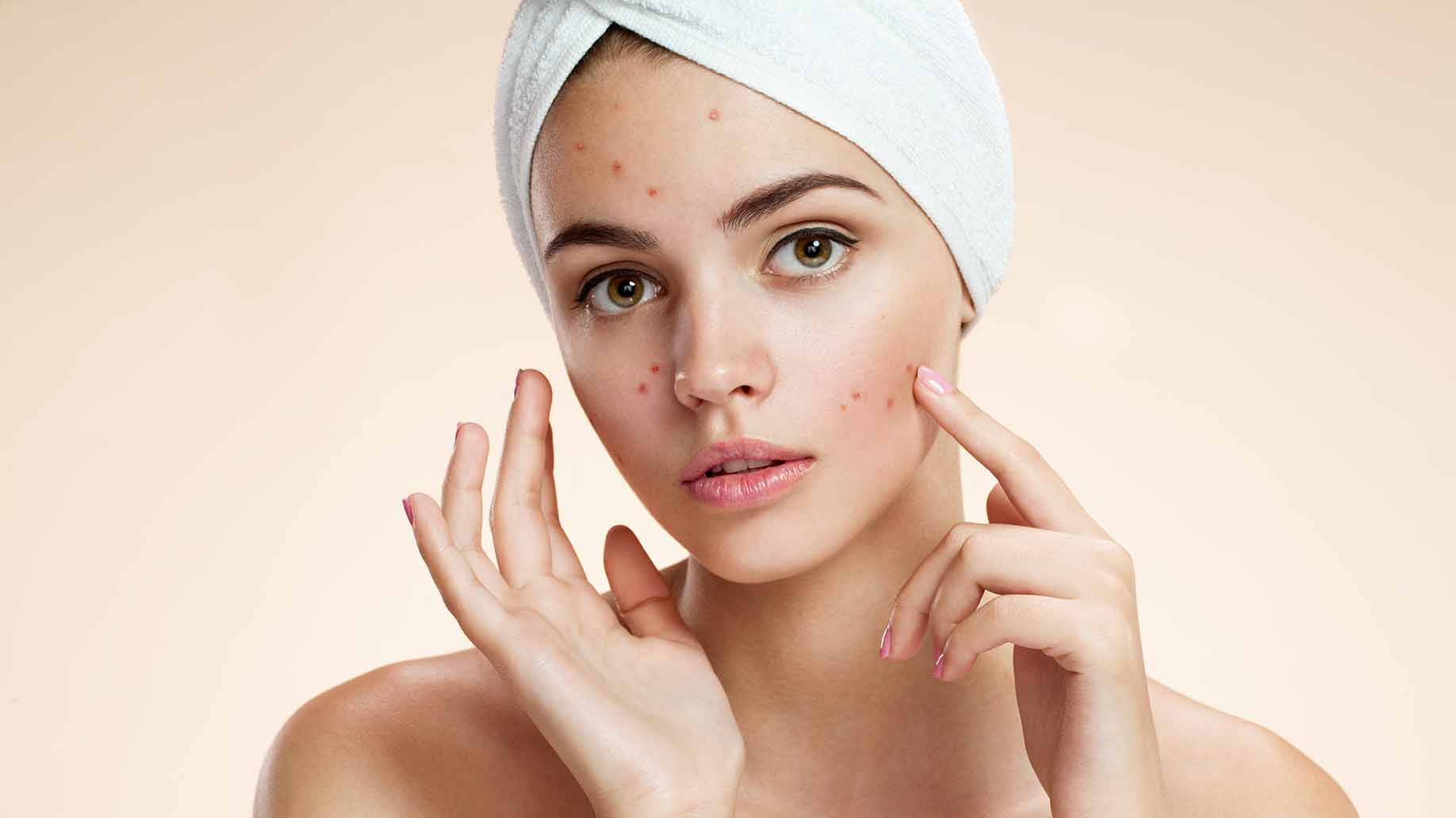 acne-natural-facial-masks-diy-problem-skin.jpg