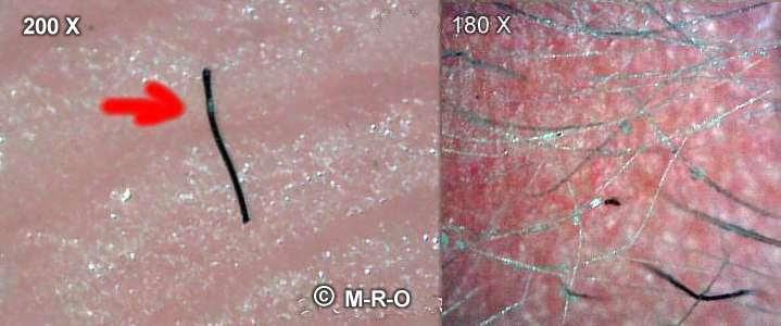 morgellons-hairs2.jpg (26770 Byte)